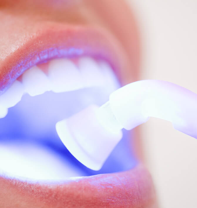 teeth whitening in office